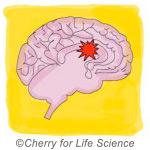 Hypothèse neuro-développementale